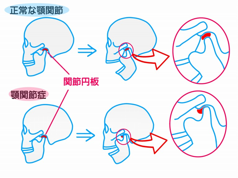 顎関節症に薬やマッサージ、マウスピースなどで改善を図りますついて